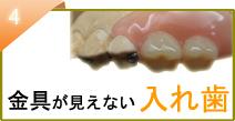 金具が見えない入れ歯